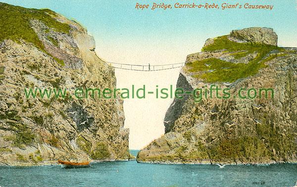 Antrim - Giants Causeway - Rope Bridge